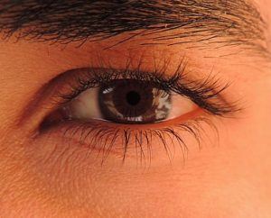 8 300x242 - Got Droopy Eyes? Eyelid Surgery Could Freshen Your Look